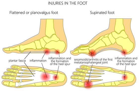 The plantar fascia is the longest ligament in your foot